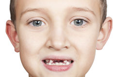 Loss of primary teeth in children Stock Photo