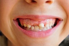 Lost milk teeth Royalty Free Stock Photography