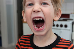 Lost my first tooth Stock Photography