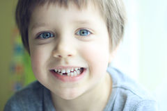 Lost tooth. A portrait of a boy who has lost his first milk tooth Stock Photo
