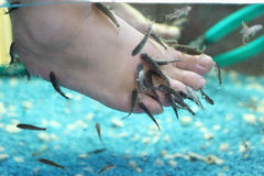 Lot of small fish eat old skin on children feet Stock Images