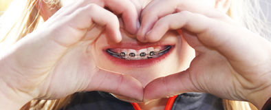 Love my braces Royalty Free Stock Photo