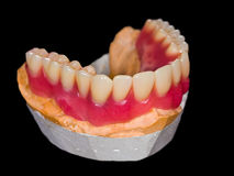 Lower denture Royalty Free Stock Photos