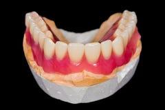 Lower denture Royalty Free Stock Photo