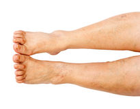 Lower extremity disease Royalty Free Stock Photos