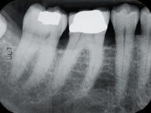 Lower Left Periodontal X-rays Royalty Free Stock Photo