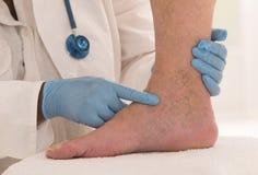 Lower limb vascular examination by phlebologist. Man Lower limb vascular examination royalty free stock image