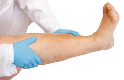 Lower limb examination. Lower limb vascular examination because suspect of venous insufficiency Royalty Free Stock Photo