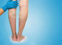 Lower limb vascular examination because suspect of venous insufficiency Stock Images