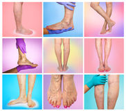 Lower limb vascular examination because suspect of venous insufficiency. Royalty Free Stock Photos