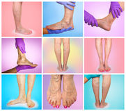 Lower limb vascular examination because suspect of venous insufficiency. Stock Image