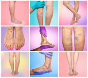 Lower limb vascular examination because suspect of venous insufficiency. Royalty Free Stock Photography