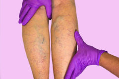 Lower limb vascular examination because suspect of venous insufficiency Stock Image