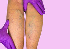 Lower limb vascular examination because suspect of venous insufficiency Royalty Free Stock Image
