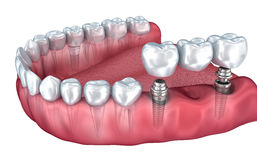 Lower teeth and dental implant transparent render isolated on white Royalty Free Stock Images