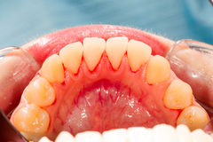 Lower Teeth. After ultrasonic plaque removal Stock Photography