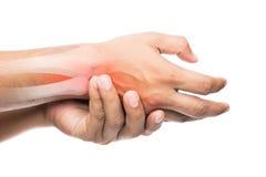 Ludzie cierpi od ręka bólu zdjęcie stock