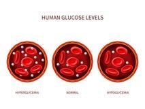 Ludzka glikoza zrównuje przecukrzenie, normalna, hypoglycemia Hematologia wektorowy diagram z naczyniem krwionośnym, erytrocyty i royalty ilustracja
