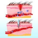 Ludzka skóra reakcja odpornościowa system Obraz Royalty Free