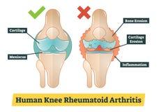 Ludzki Kolanowy Rheumatoid artretyzm, diagram ilustracja Zdjęcie Stock