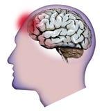 Ludzki mózg, cerebellum i migreny, Migrena ilustracja wektor