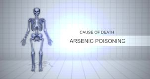 Ludzki Sądowy autopsji animacji pojęcie Arsenowy otrucie - przyczyna śmierci - zdjęcie wideo
