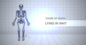 Ludzki Sądowy autopsji animacji pojęcie Kłama w czekaniu - przyczyna śmierci - zdjęcie wideo