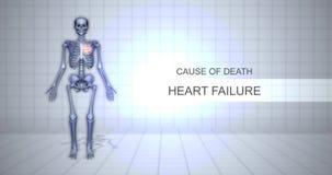 Ludzki Sądowy autopsji animacji pojęcie niewydolność serca - przyczyna śmierci - ilustracja wektor