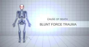 Ludzki Sądowy autopsji animacji pojęcie Stępia siła uraz - przyczyna śmierci - zbiory