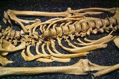 Ludzkie Zredukowane kości obrazy royalty free