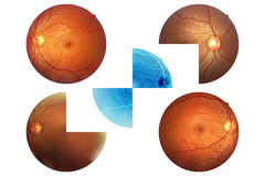 Ludzkiego oka anatomia, siatkówka, wzrokowego dyska arteria etc i żyła, Zdjęcie Royalty Free
