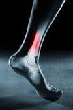 Ludzkiej stopy noga w promieniowaniu rentgenowskim i kostka obrazy royalty free