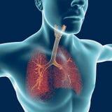 Luftrör människokroppen, inflammation stock illustrationer