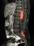 Lumbal rygg för MRI Arkivbilder