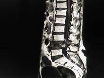 Lumbal rygg för MRI arkivbild
