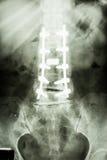 Lumbal rygg med pedicleskruvfixering Arkivbild