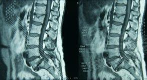 Lumbale Stekel MRI Stock Afbeelding