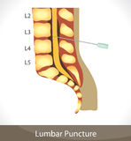Lumbar puncture Royalty Free Stock Images