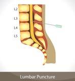 Lumbar puncture. Detailed diagram of Lumbar puncture Royalty Free Stock Images