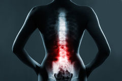 The lumbar spine is highlighted by red colour stock images