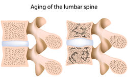 Lumbar spine osteoporosis. Lumbar spine with and without osteoporosis, eps8, gradient and mesh printing compatible Royalty Free Stock Images