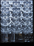 Lumbosacral kolonn för MRI, bråck intra-foraminal höger L5-S1 Royaltyfria Foton