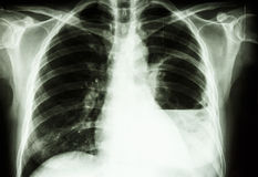 Lung abscess. Film X-ray show left lung abscess from Burkholderia pseudomallei infection (Mellioidosis royalty free stock image