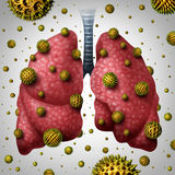 Lung Allergy Illustration Stock