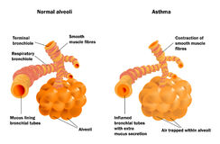 Lung alveoli normal and asthma. Structure of terminal bronchioles and alveoli in the normal state and during asthmatic constriction Stock Photos