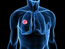 Lung cancer Stock Photo