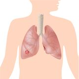 Lung cancer stock illustration