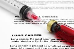 Lung cancer Stock Image