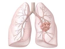 Lung cancer. 3d rendered anatomy illustration of a human lung wit carzinoma Royalty Free Stock Photo