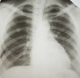 Lung cancer. Royalty Free Stock Photography